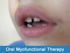 Oral-Myofunctional-Therapy-NYC