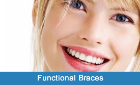 functional-braces-nyc