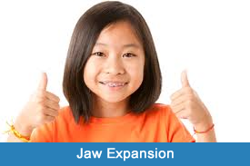 jaw-expansion-nyc